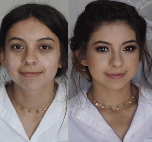 пластические операции алены водонаевой, фото до и после пластик
